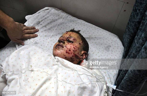 Palestinian kid Sair Sevde lost his right leg and some fingers of hands during an Israeli assault is taken to the Al Shifa Hospital on August 27 2014