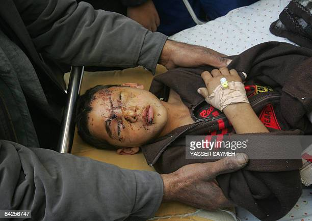 Palestinian Louai Sobeh is treated for burns at Shifa hospital in Gaza City on January 12 2009 Palestinian doctor working in Gaza City Dr Yusef Abu...