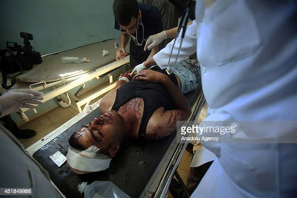Palestinian man receives treatment at a hospital after he was injured in an Israeli airstrike in Khan Younis southern Gaza Strip on July 8 2014 Seven...