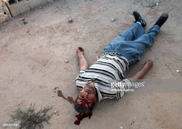 Palestinian man shot in the head with a rubber bullet fired by Israeli soldiers lays on the ground during the clashes between Palestinians and...