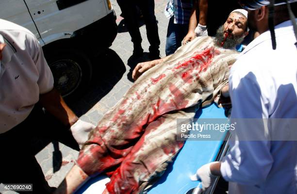 Palestinian man wounded following an Israeli air strike arrives at a hospital in Khan Yunis in the southern Gaza Strip Israeli tanks and warplanes...