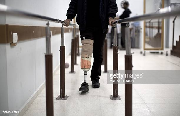 Palestinian Osama alBatsh wounded during the 50 days of conflict between Israel and Hamas last summer practices walking with his prosthetic leg at...