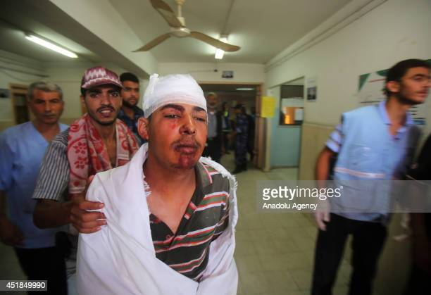 Palestinian youth receives treatment at a hospital after he was injured in an Israeli airstrike in Khan Younis southern Gaza Strip on July 8 2014...