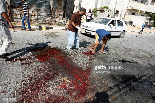 Palestinians inspect the remains of a man's body parts that was hit by an Israeli air strike in Khan Yunis, in the Southern Gaza Strip. There were...