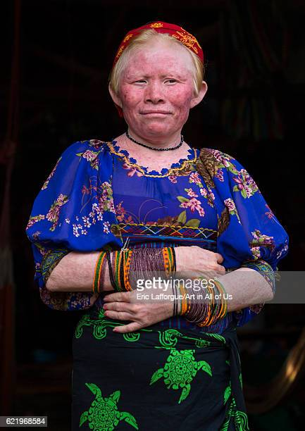 Panama San blas islands Mamitupu Portrait of an albino Kuna tribe woman on April 17 2015 in Mamitupu Panama
