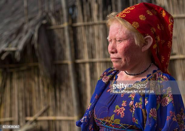 Panama San blas islands Mamitupu Portrait of an albino Kuna tribe woman on April 17 2015 in Mamitupu Panama
