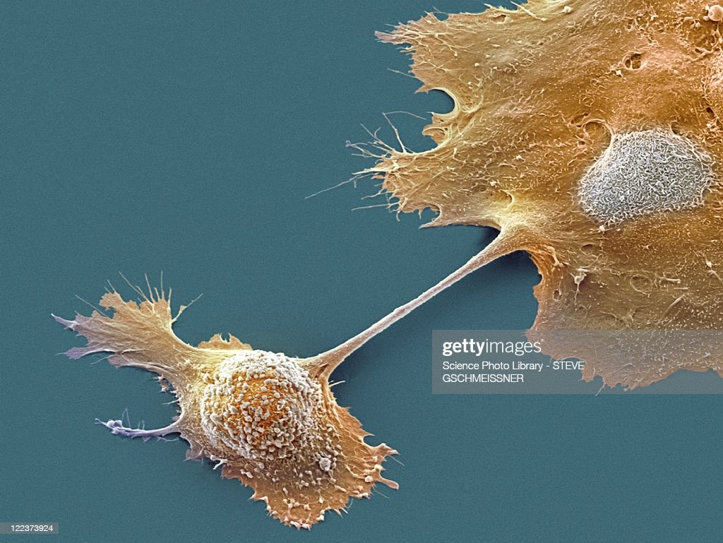 Pancreatic cancer cells, SEM : Stock Photo