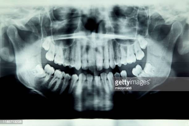 panoramic x-ray image of teeth and mouth - dental filling stock pictures, royalty-free photos & images