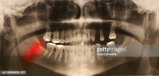 Panorex jaw x-ray showing fractured mandible