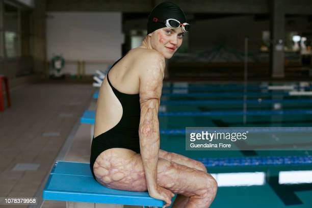 girl training in the swimming pool - meningite - fotografias e filmes do acervo