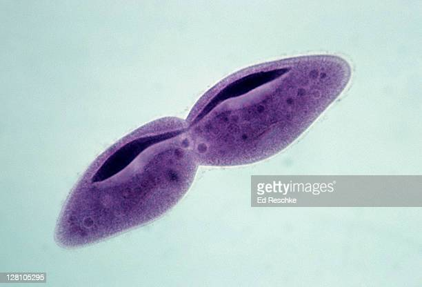 paramecium. fission, cell and macronucleus dividing, 100x at 35mm. this is asexual reproduction. - celldelning bildbanksfoton och bilder