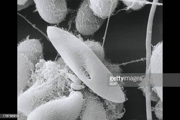 Paramoecium Sem Protozoan