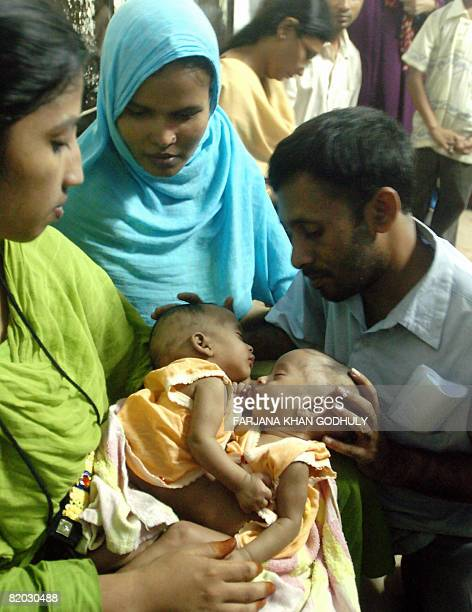 Parents of threemonthold cojoined twins Banya Flood and Barsha Rain Shahnaz Begum and Golam Kibria watch the twins at the Bangabandhu Medical College...