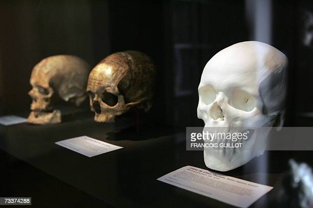 Picture taken 20 February 2007 of a plaster cast of the skull of Barcelona's French football player Lilian Thuram exposed close to the skull of...