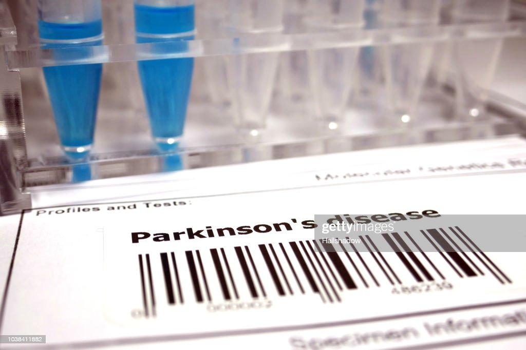 Parkinson's disease genetic test : Stock Photo