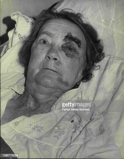A Partlyblind frail old pensioner bashed while shopping at Ashfield asked today 'What kind of person would do this'Mrs Dorothy Jean Wheeler of...