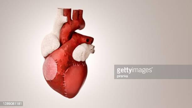 corazón parcheado - tejido partes del cuerpo fotografías e imágenes de stock