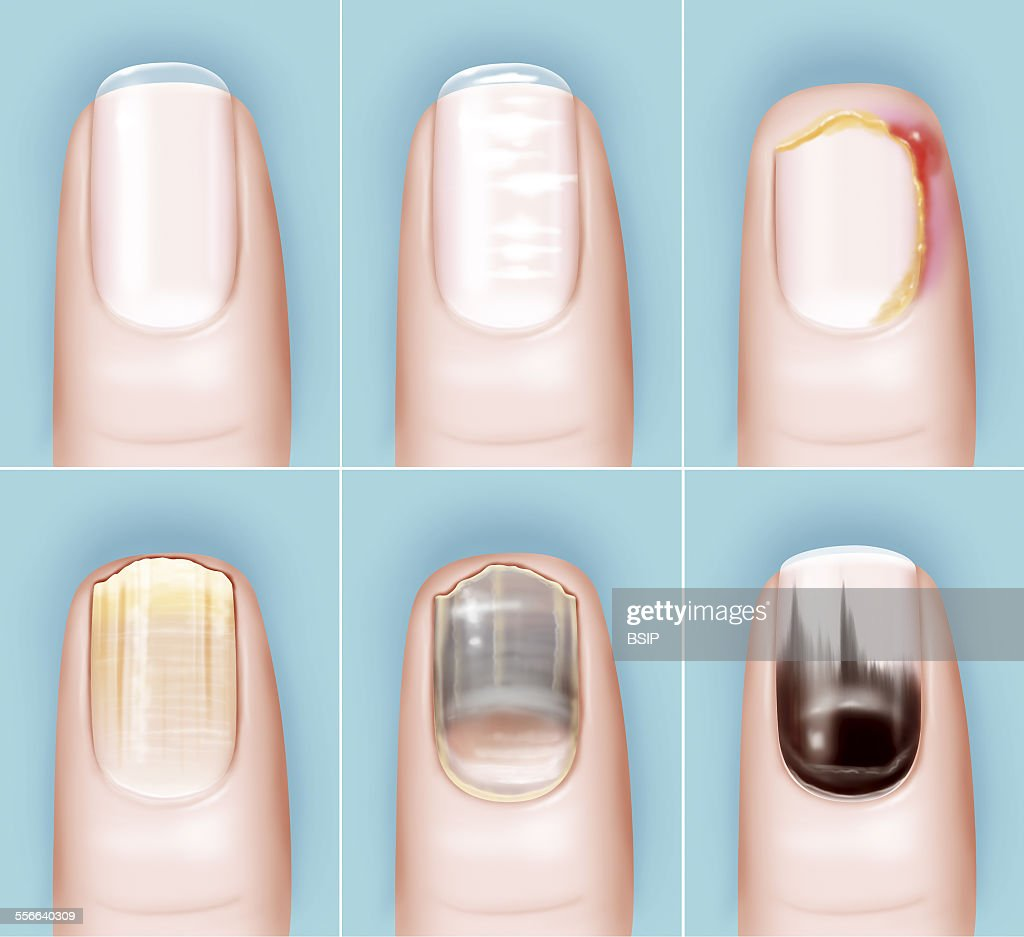 Pathology Of The Nail, Drawing Pictures | Getty Images