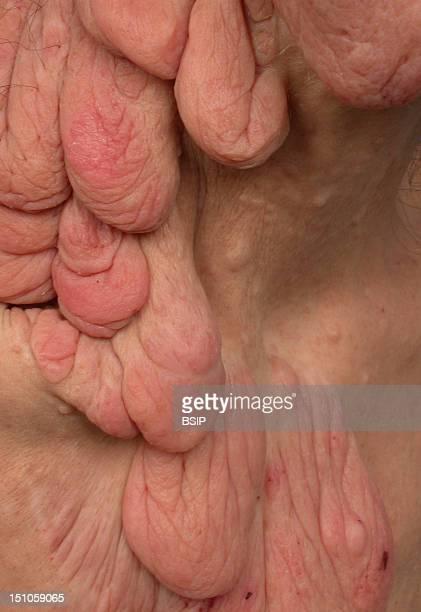 Patient Affected By Recklingahusen's Disease Cervicothoracic Royal Tumor