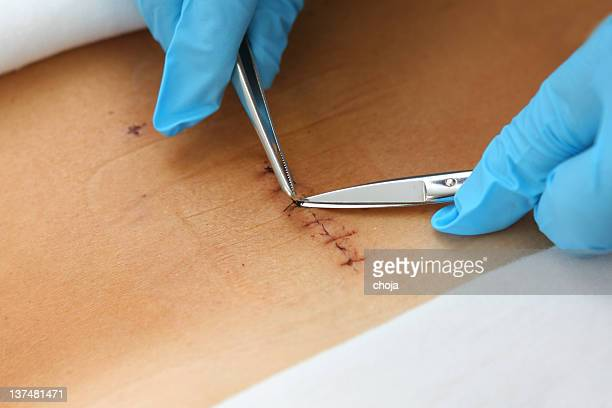 patient after spinal disc operation...nurse removing stitches - medical stitches stock photos and pictures