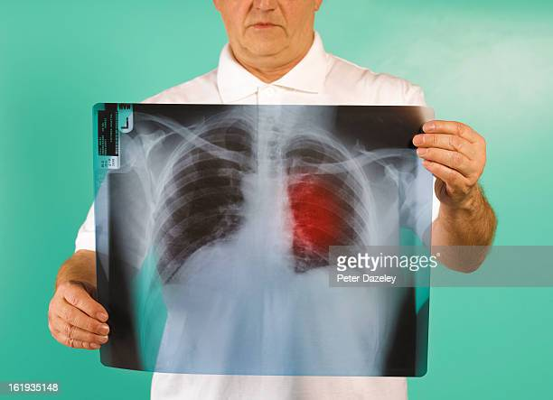 Patient examining x-ray of lung cancer