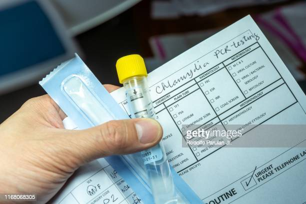 patient holding a sample collection tube for chlamydia testing with doctor's request - geschlechtskrankheit stock-fotos und bilder