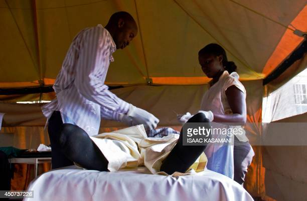 A patient is fitted with a nonsurgical circumcision device called Prepex in Mukono on May 12 2014 The simple device two plastic rings and an elastic...