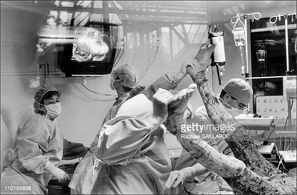 The burns victims in Clamart France in March 1999 April 17 patient is rapidly prepared receive graft