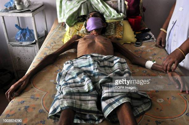 TB patient is seen laying on a hospital bed According to the World Health Organization TB is one of the top 10 causes of death worldwide