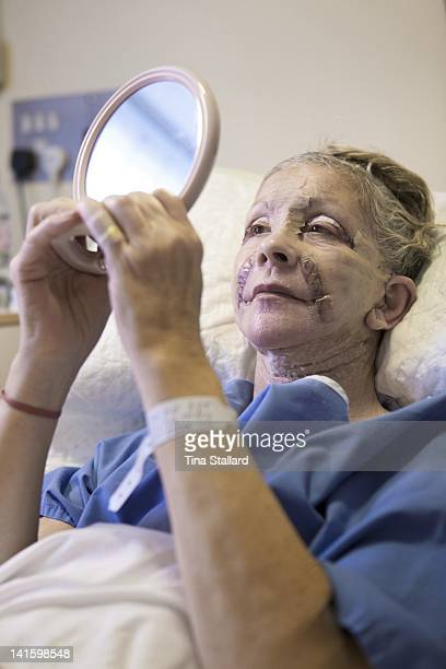 A patient looks in a mirror for the first time the day after her facelift Her face is bruised and swollen and she still has dressings on the cuts on...