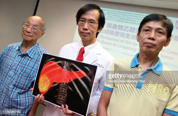 Patient Mr Soong 81 yrs Dr Simon Yu Chunho from the Vascular and Interventional Radiology Foundation Clinical Science Centre at the Chinese...