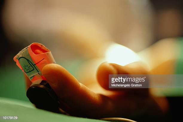 Patient on operating table with pulse oxymeter on finger, close-up