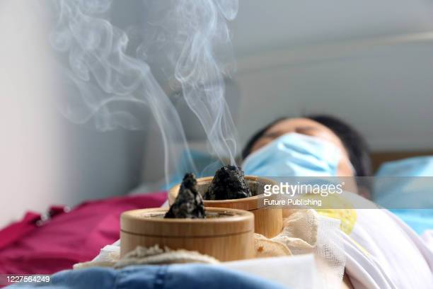 LIANYUNGANG CHINA JULY 16 2020 A patient performs umbilical moxibustion with traditional Chinese medicine Lianyungang city Jiangsu Province China...