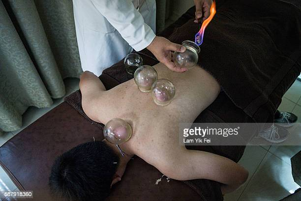 A patient receives cupping treatment by Dr Eason Yu Kin Cho at a Chinese medicine clinic on August 10 2016 in Hong Kong The Chinese treatment also...