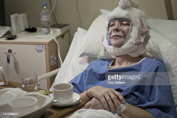 A patient recovers in hospital the day after her facelift Her cuts have been dressed and her head is bandaged in cotton wool and elastic netting...