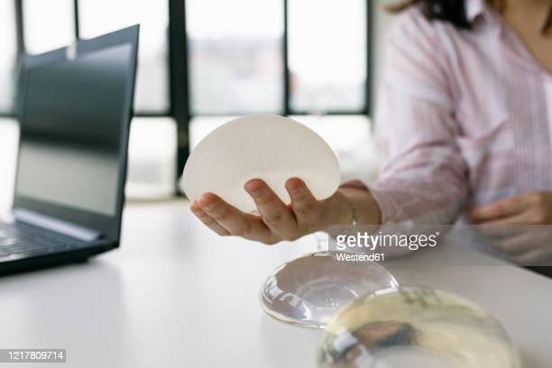 patient sitting at desk in medical practice holding breast implant - implant mammaire photos et images de collection