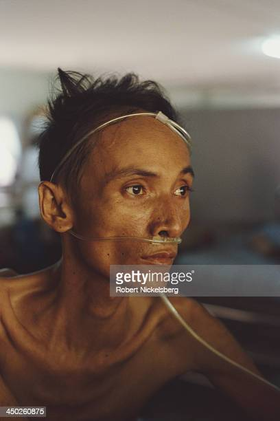 A patient suffering from AIDS in a hospice in Thailand circa 1987