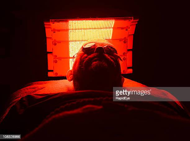 patient undergoing photodynamic therapy for basal cell carcinomas - basal cell carcinoma stock pictures, royalty-free photos & images