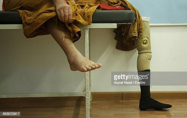 patient using prosthetic leg - fake hospital stock pictures, royalty-free photos & images