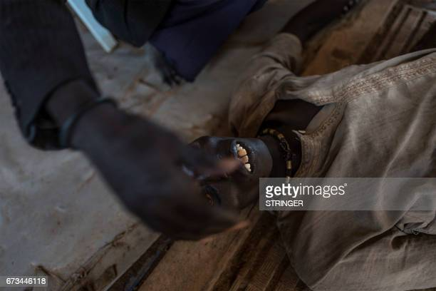 A patient with cholera is checked moments before his death at the temporary specialized hospital in Mingkaman a camp for the Internally displaced...