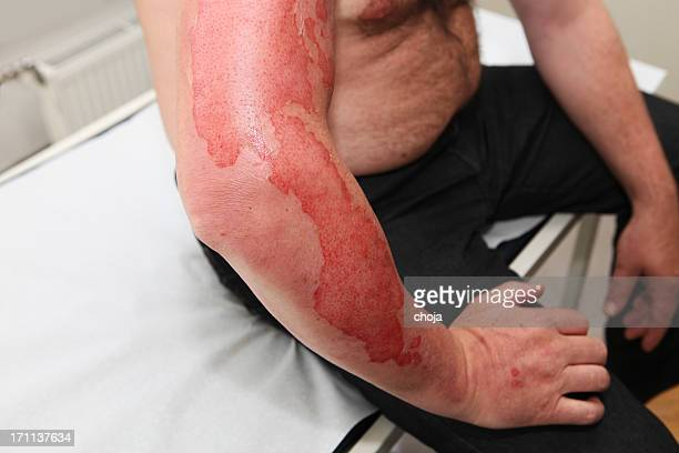 patient with first-degree burn - burn injury stock photos and pictures