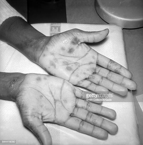 A patient with papulosquamous syphilids or cutaneous eruptions of the disease seen here on the wrist and palms 1971 This patient presented with...