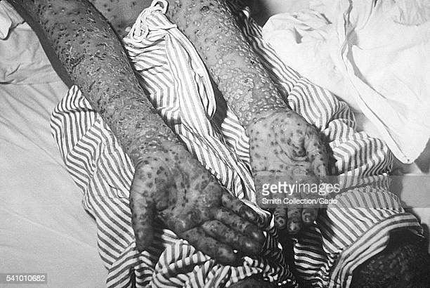Patient with smallpox Kosovo Yugoslavia epidemic March and April 1972 The scabs will eventually fall off leaving marks on the skin that will become...