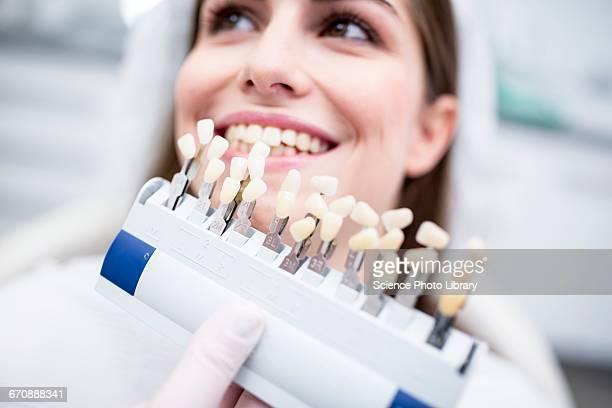 Patient with tooth veneers
