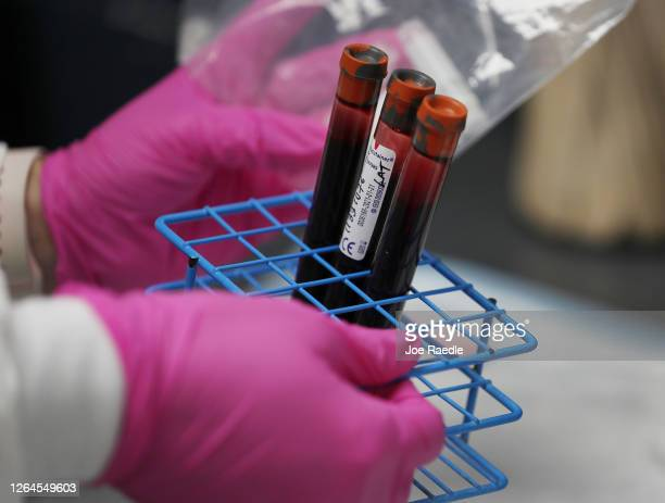 Patients blood samples are seen during a COVID-19 vaccination study at Research Centers of America on August 07, 2020 in Hollywood, Florida. Research...