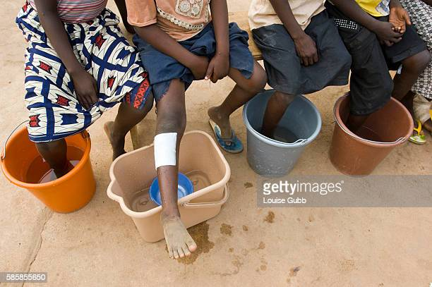 Patients with guinea worms emerging soak their feet in cold water to hasten the painful emergence at the Savelugu Case Containment Center