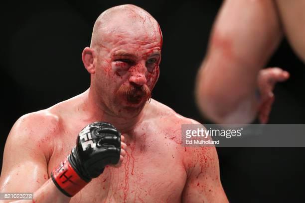 Patrick Cummins bleeds from a cut during his UFC Fight Night light heavyweight bout against Gian Villante at the Nassau Veterans Memorial Coliseum on...