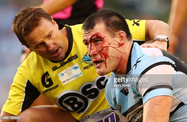 Paul Gallen of the Sharks receives attention for a cut after a head collision with Nigel Plum of the Panthers during the round 8 NRL match between...