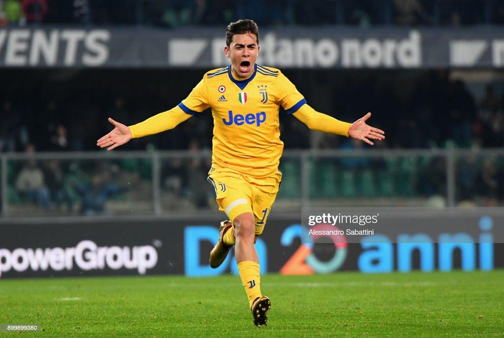 Hellas Verona FC v Juventus - Serie A : Foto di attualità