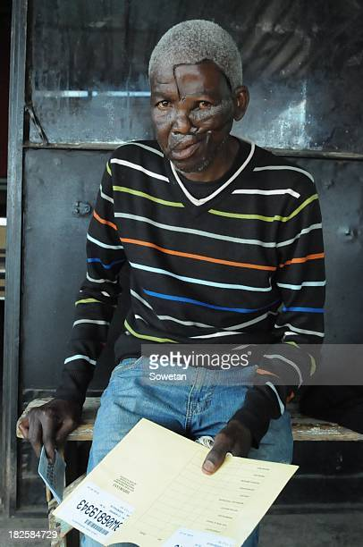 Paulos Radebe during an interview on September 24 2013 in Soweto South Africa Paulos Radebe has been left with a deformed face after a skin graft...